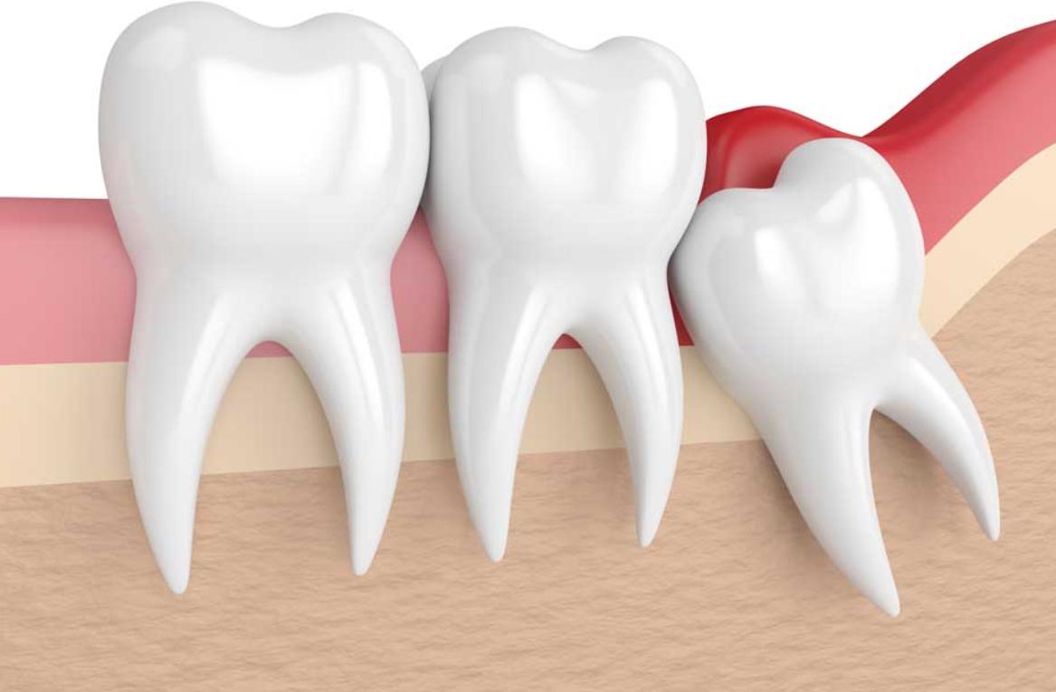 Зубы мудрости: стоит ли удалять?